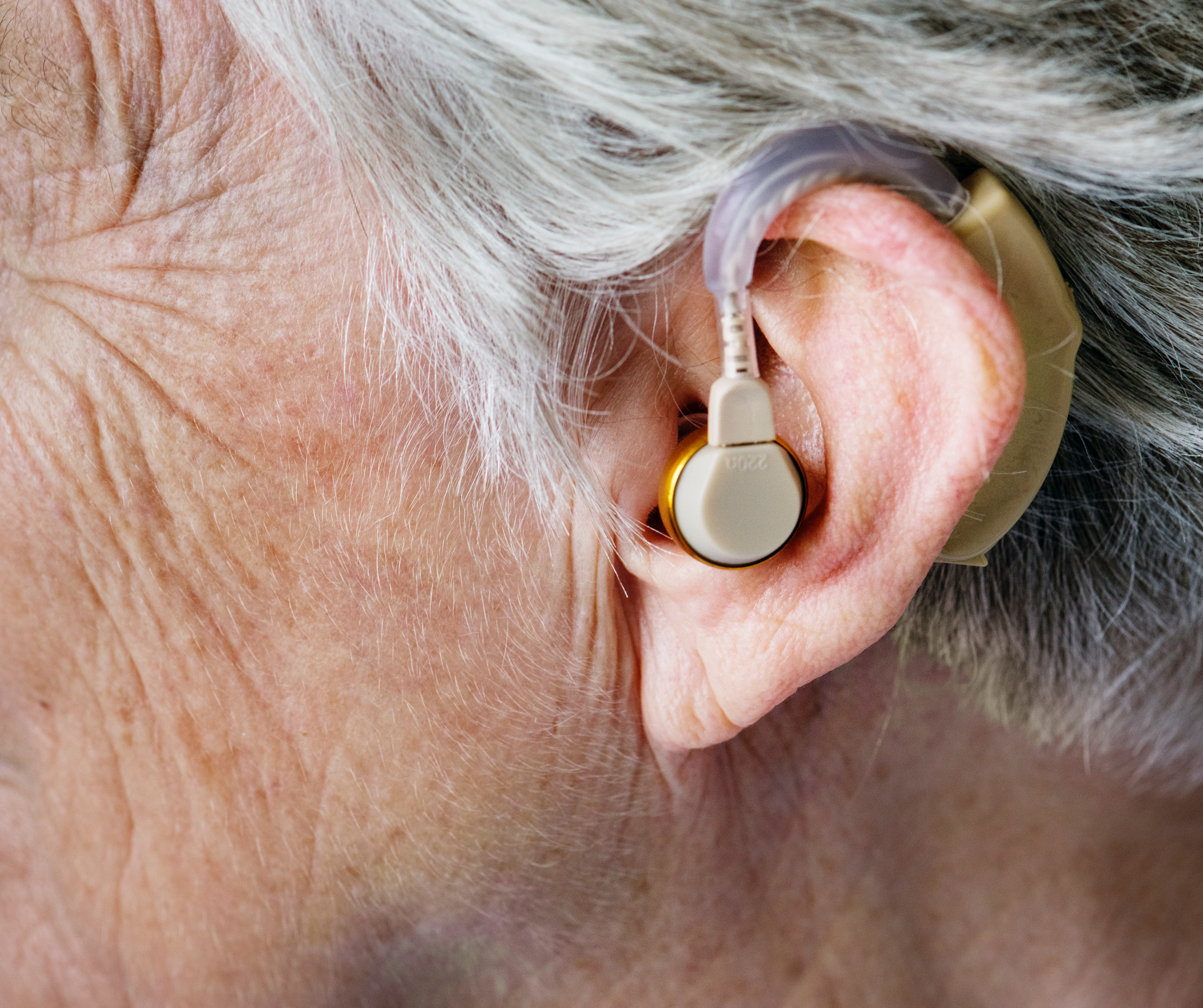 If Hearing Loss is Not Treated, Brain Can 'Forget' How to Hear and Understand Speech, Says Expert