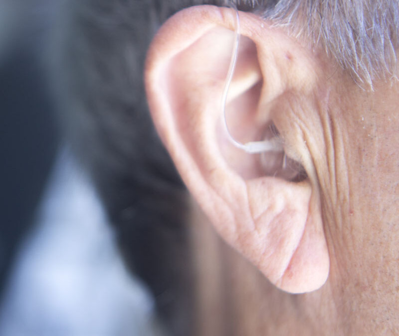 Hearing Aids and Cognitive Function
